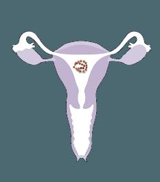 A képen egy női reprodutkív rendszer, a méh látható, melybe az IUB™ rézgyöngy fogamzásgátló spirál lett felhelyezve