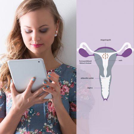 A kép bal felén egy nő látható, kezében egy tablettel. A jobb felén meg rajzol képt egy női reproduktív rendszer, a méh látható, melybe az IUB™ rézgyöngy spirál lett felhelyezve. A képen megnevezik a méh egyes részeit