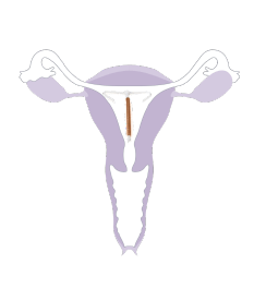 A képen egy női reprodutkív rendszer, a méh látható, melybe egy hagyományos méhen belüli fogamzásgátló lett felhelyezve
