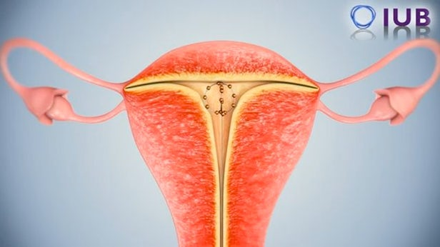 A Rézgyöngy IUB fogamzásgátló a méhen belül