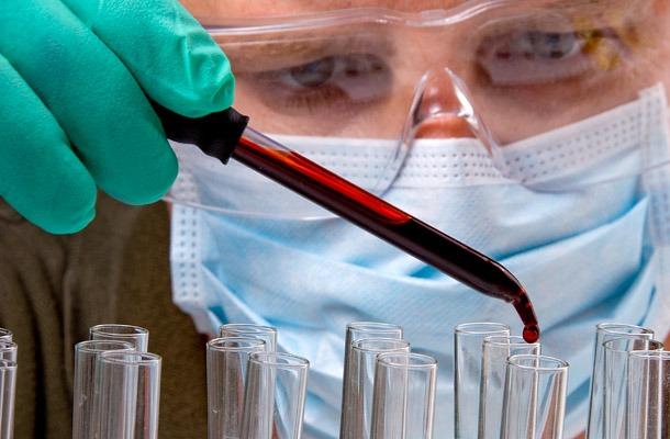 A képen egy orvos látható maszkban, miközben vérvételből származó vért csepegtet egy petricsészébe.