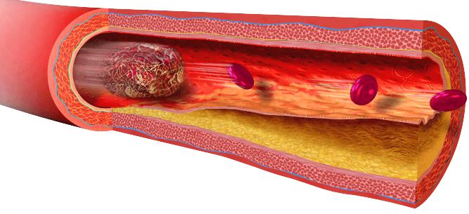 a képen egy verrögképződás folyamata látható a tabletták hatására