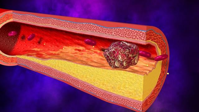 a képen egy kialakult vérrög látható. tabletták