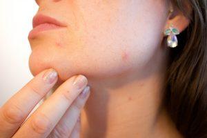 fogamzásgátló váltás során pattanásos bőr mellékhatása