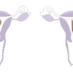 Hormonmentes IUD és a Rézgyöngy mérete